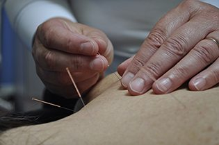 We use acupuncture to restore, promote and maintain good health by stimulating the body's natural healing mechanisms.